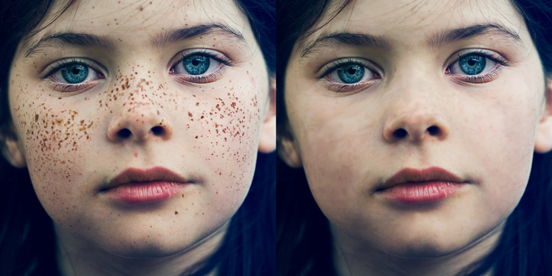 Removing Freckles and Blemishes in Photoshop